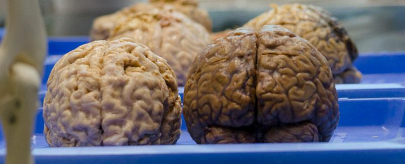 Examinan Relación Entre El Olfato Y El Cerebelo